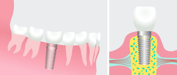 Frisco Dental Implants