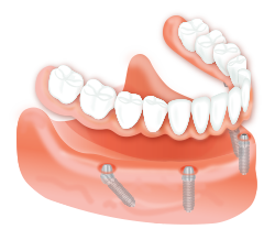 Frisco Implant-Supported Overdentures
