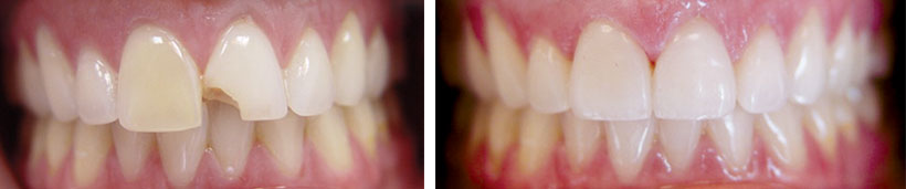 Porcelain Veneers Before and After Photo